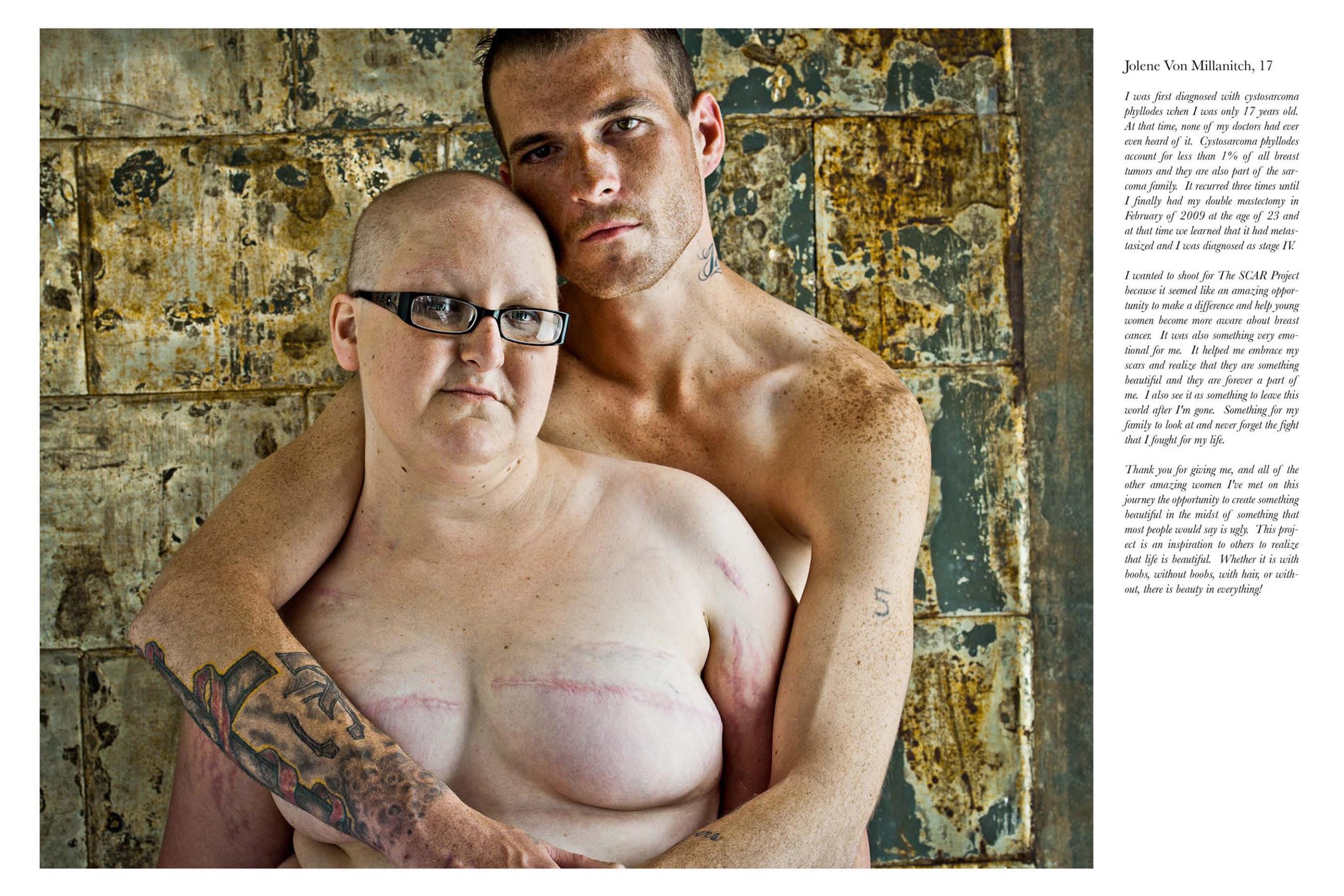 Фото отрезанная грудь 3 фотография